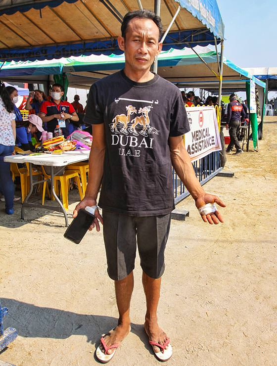 Angelito Mengilio, one of the crucified devotees at Maleldo 2019, showing his wrapped palm wounds in San Pedro Cutud, San Fernando, Pampanga, Philippines, photo by Ivan Kralj