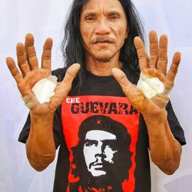 Ruben Enaje got crucified playing Jesus Christ for the 33rd time, here showing his wrapped palm wounds at Maleldo 2019, in San Pedro Cutud, San Fernando, Pampanga, Philippines, photo by Ivan Kralj
